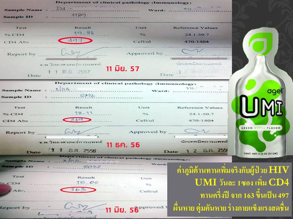 UMI HIV CD4 01