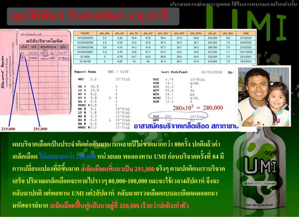 UMI เพิ่มเกล็ดเลือด